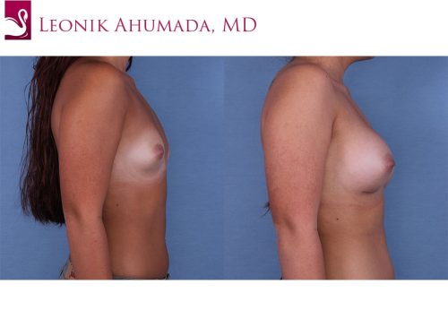 Breast Augmentation Case #60929 (Image 3)