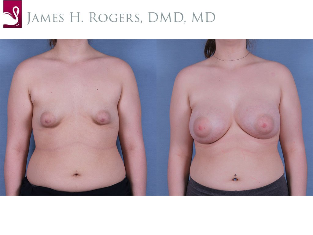 Breast Augmentation Case #61237 (Image 1)