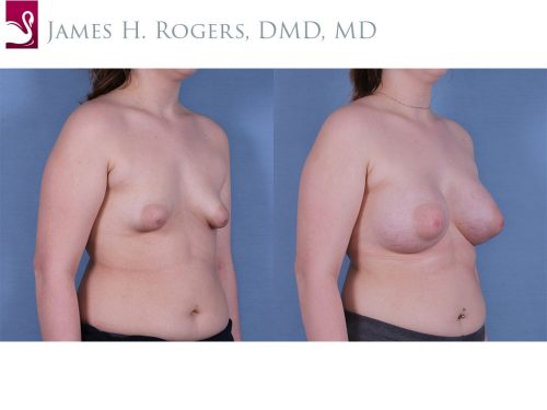 Breast Augmentation Case #61237 (Image 2)