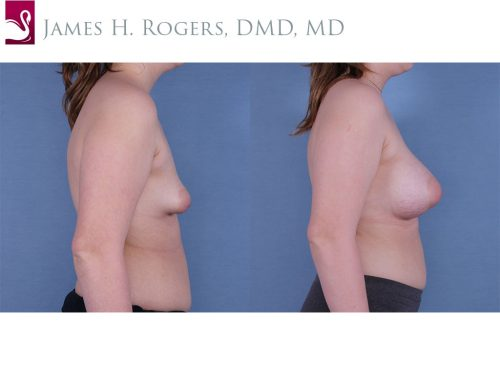 Breast Augmentation Case #61237 (Image 3)