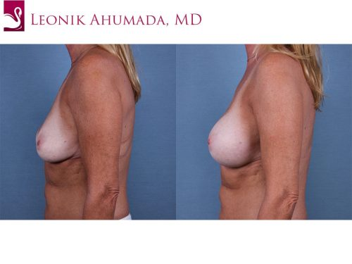 Breast Revisions Case #61348 (Image 3)