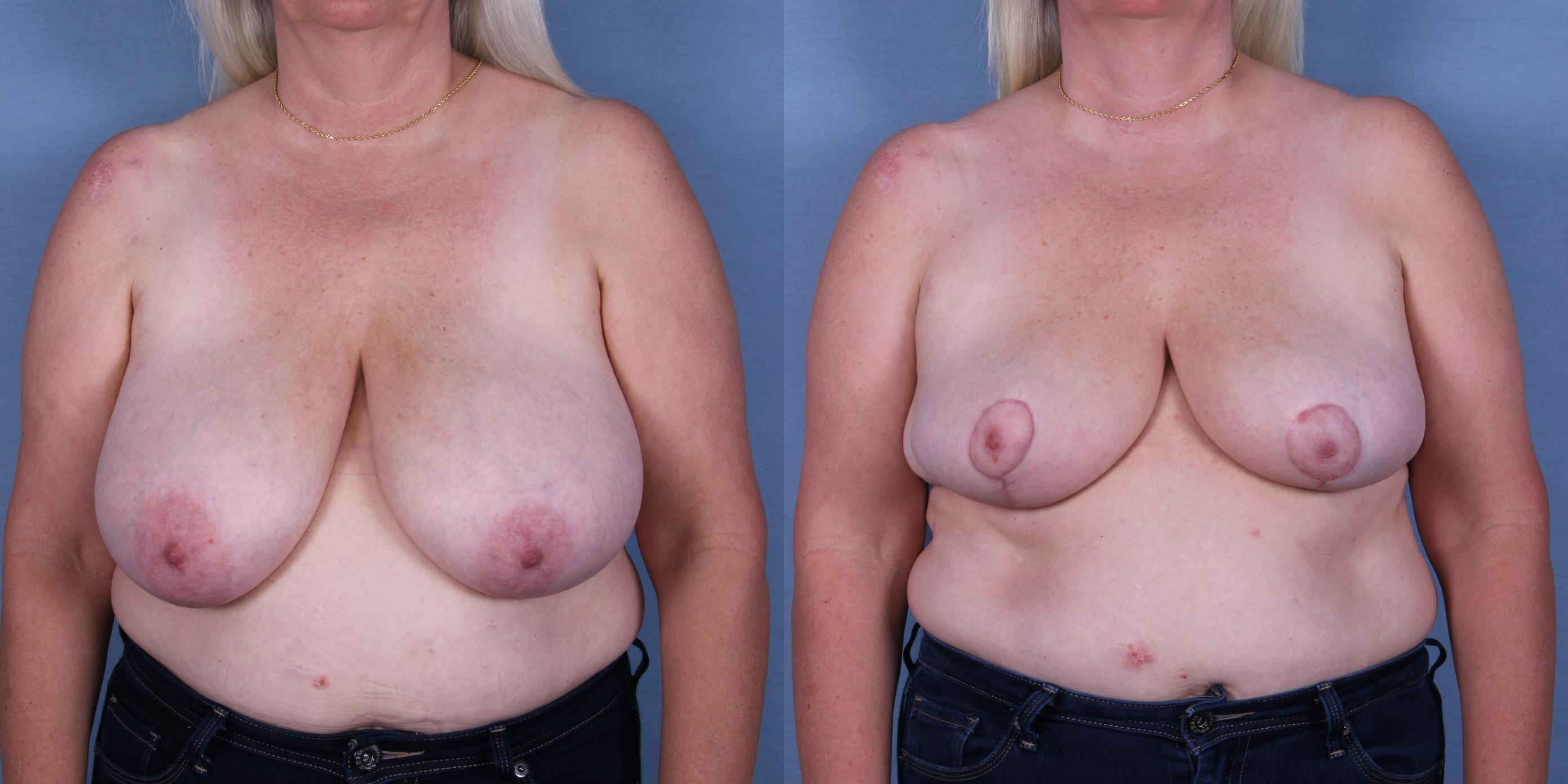 Female Breast Reduction Case #53450 (Image 1)