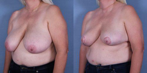 Female Breast Reduction Case #53450 (Image 2)