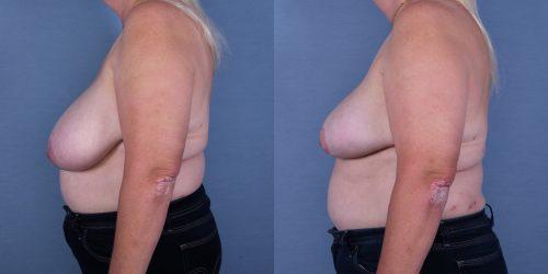 Female Breast Reduction Case #53450 (Image 3)
