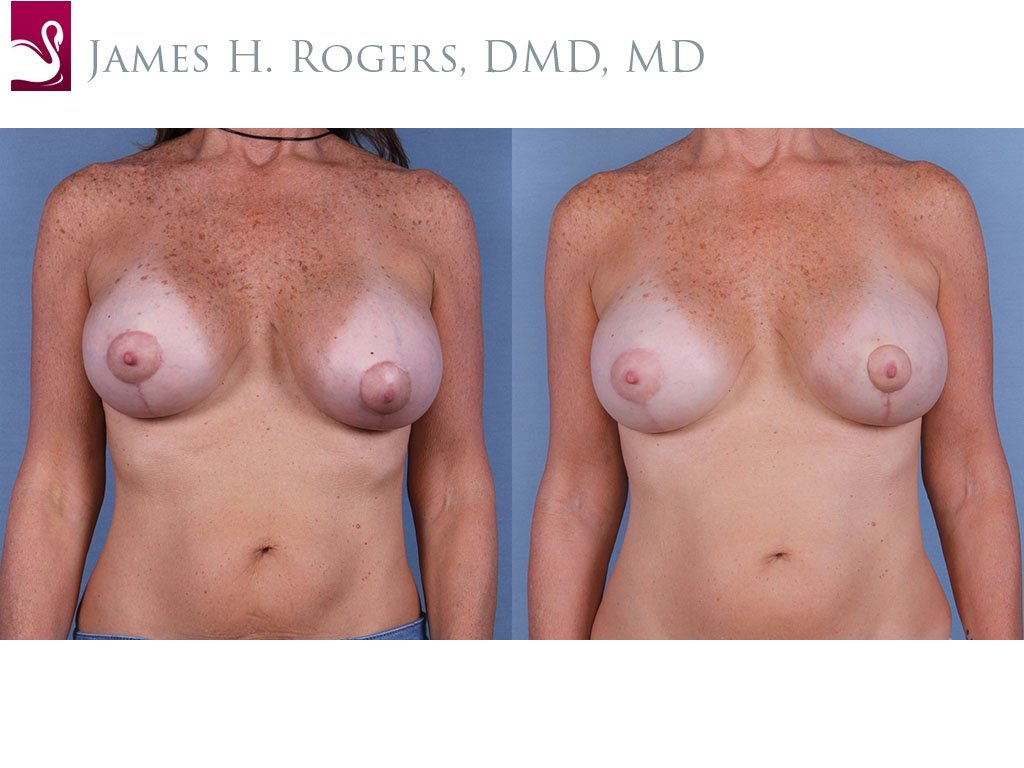 Breast Revisions Case #63179 (Image 1)