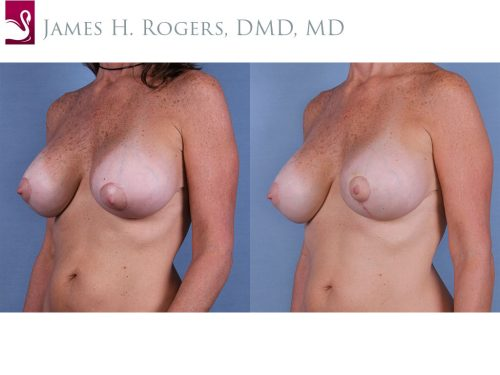 Breast Revisions Case #63179 (Image 2)