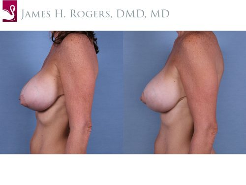 Breast Revisions Case #63179 (Image 3)