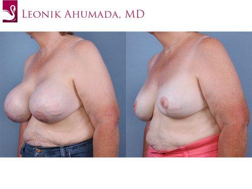 Female Breast Reduction Case #63420 (Image 2)