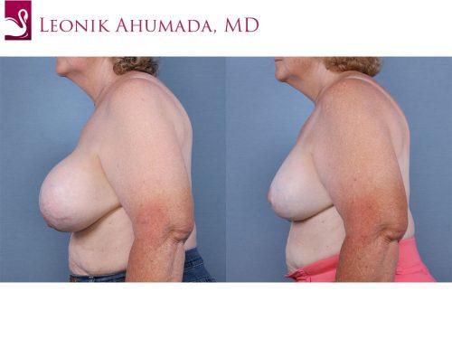 Female Breast Reduction Case #63420 (Image 3)