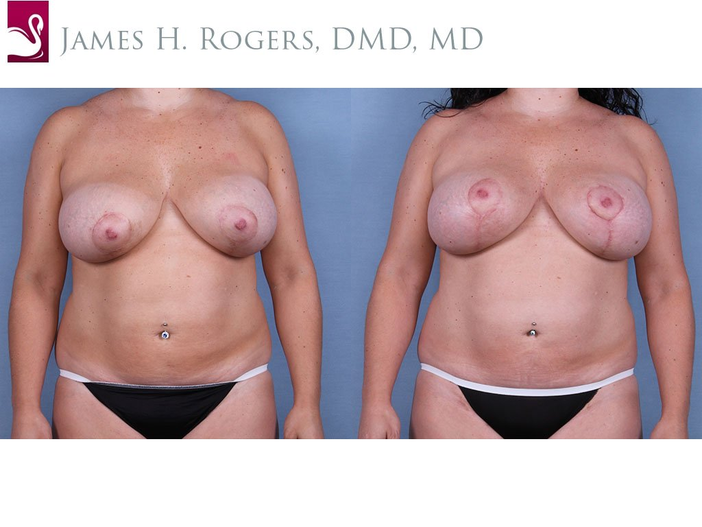 Breast Revisions Case #63337 (Image 1)