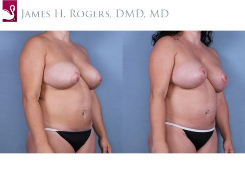 Breast Revisions Case #63337 (Image 2)