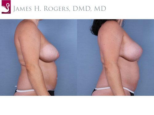 Breast Revisions Case #63337 (Image 3)