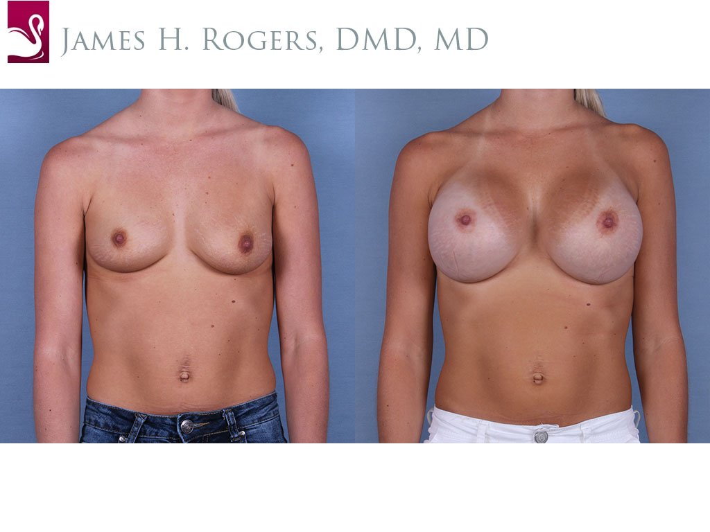 Breast Augmentation Case #64231 (Image 1)