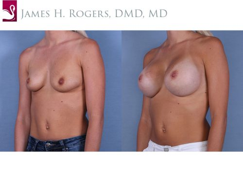Breast Augmentation Case #64231 (Image 2)