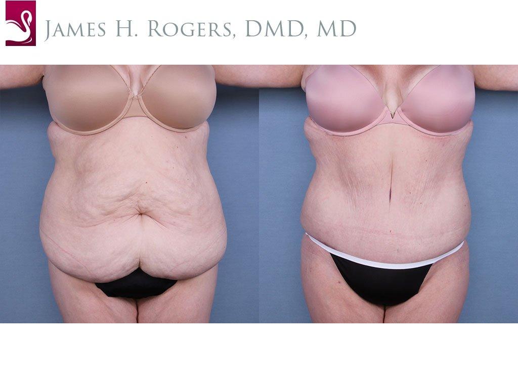 Abdominoplasty (Tummy Tuck) Case #64862 (Image 1)