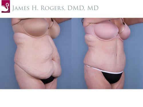 Abdominoplasty (Tummy Tuck) Case #64862 (Image 2)