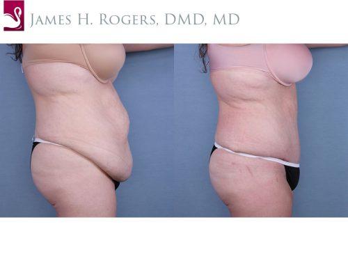 Abdominoplasty (Tummy Tuck) Case #64862 (Image 3)