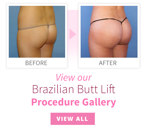 Brazilian butt tube