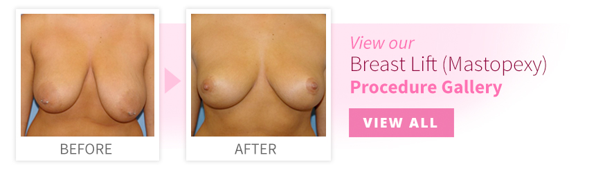 View our Breast Lift Procedure Gallery