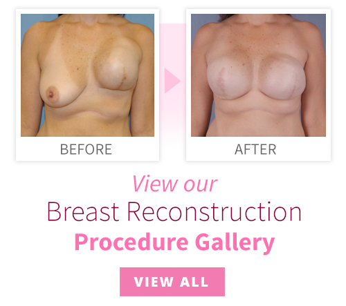 View our Breast Reconstruction Procedure Gallery
