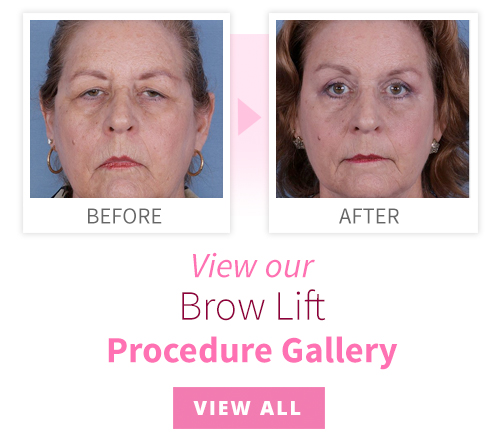 View our Brow Lift Procedure Gallery