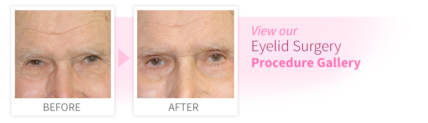 View our Eyelid Surgery Procedure Gallery