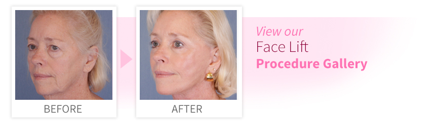 Facial Rejuvenation | Face Lift | Ocala Plastic Surgery