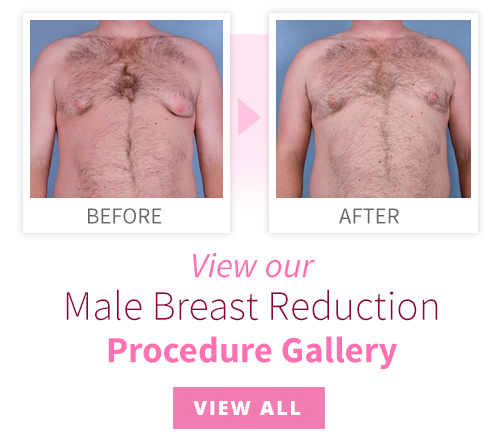 View our Male Breast Reduction Procedure Gallery