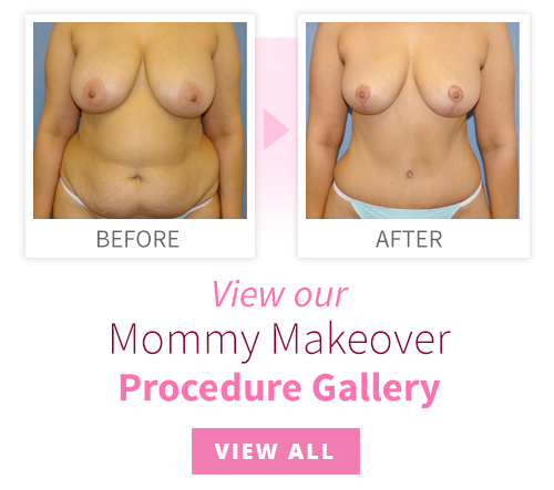 View our Mommy Makeover Procedure Gallery