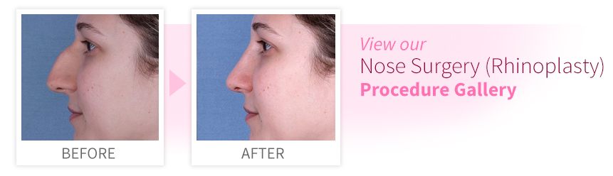 View our Nose Surgery Procedure Gallery
