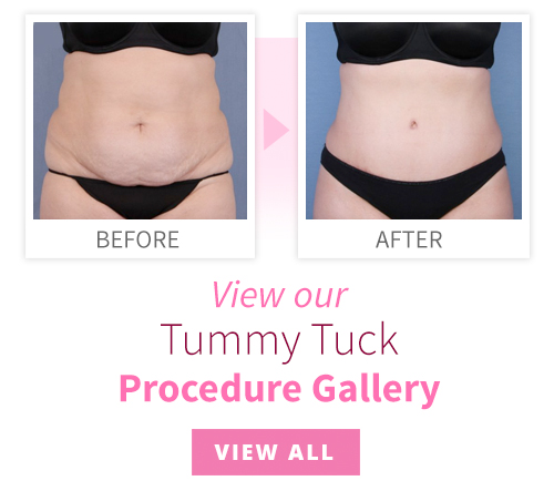 View our Tummy Tuck Procedure Gallery