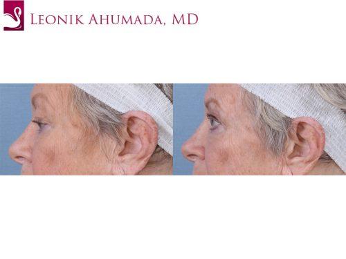 Eyelid Surgery Case #63596 (Image 3)
