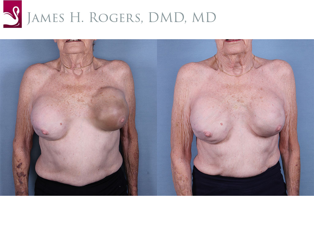 Breast Reconstruction Case #63972 (Image 1)