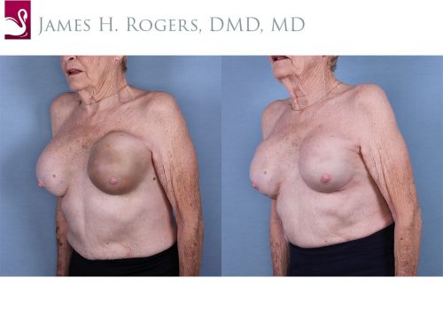Breast Reconstruction Case #63972 (Image 2)