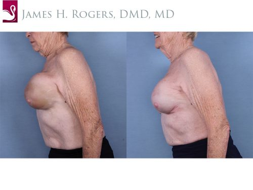 Breast Reconstruction Case #63972 (Image 3)