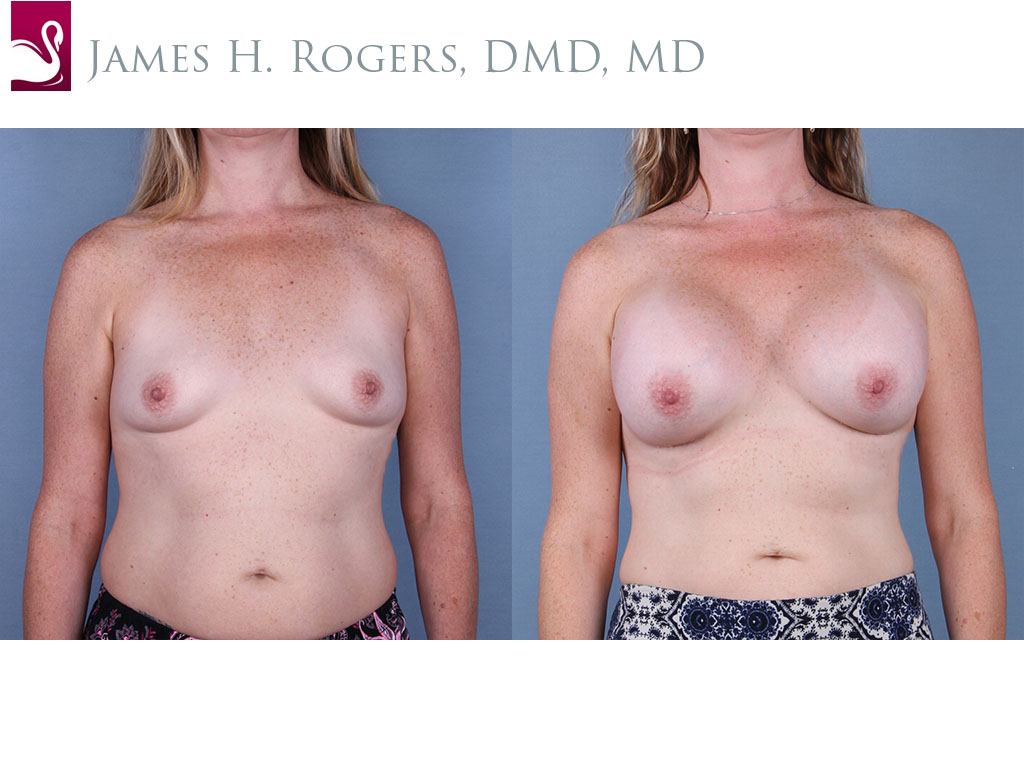 Breast Augmentation Case #65007 (Image 1)