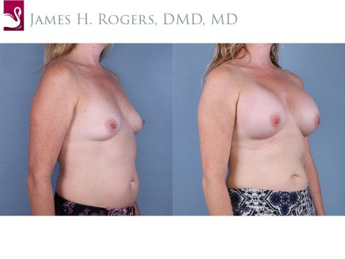 Breast Augmentation Case #65007 (Image 2)