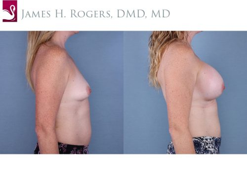 Breast Augmentation Case #65007 (Image 3)
