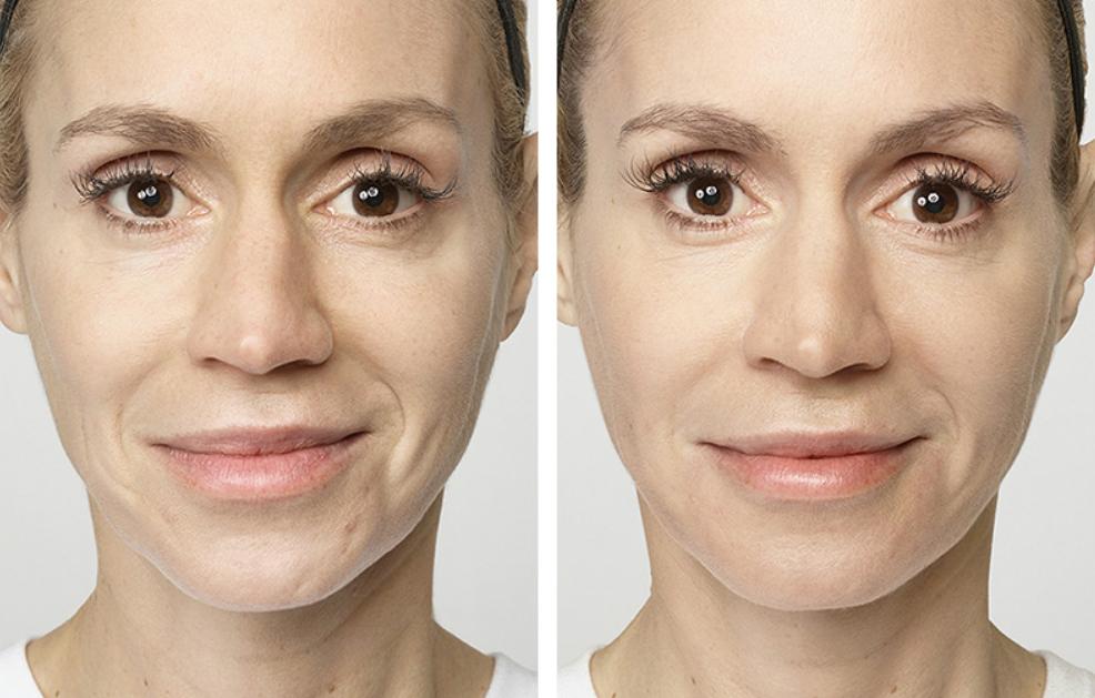 Restylane | Aqua Med Spa | Ocala Plastic Surgery