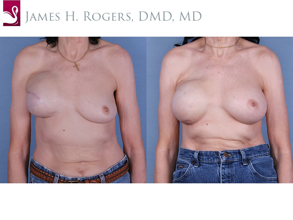 Breast Reconstruction Case #19322 (Image 1)