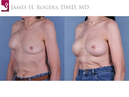 Breast Reconstruction Case #19322 (Image 2)