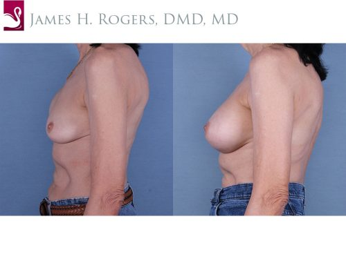 Breast Reconstruction Case #19322 (Image 3)