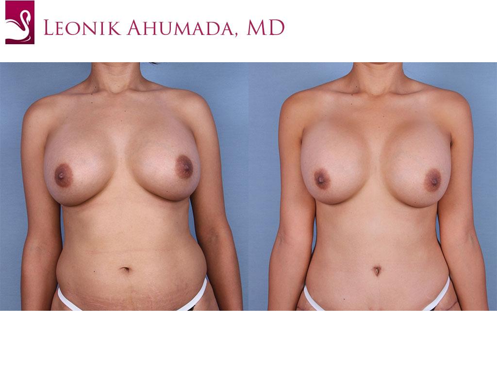 Breast Augmentation Case #45050 (Image 1)
