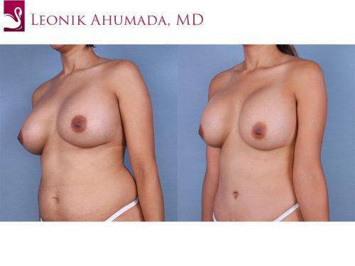 Breast Augmentation Case #45050 (Image 2)