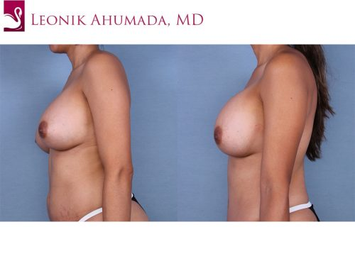 Breast Augmentation Case #45050 (Image 3)