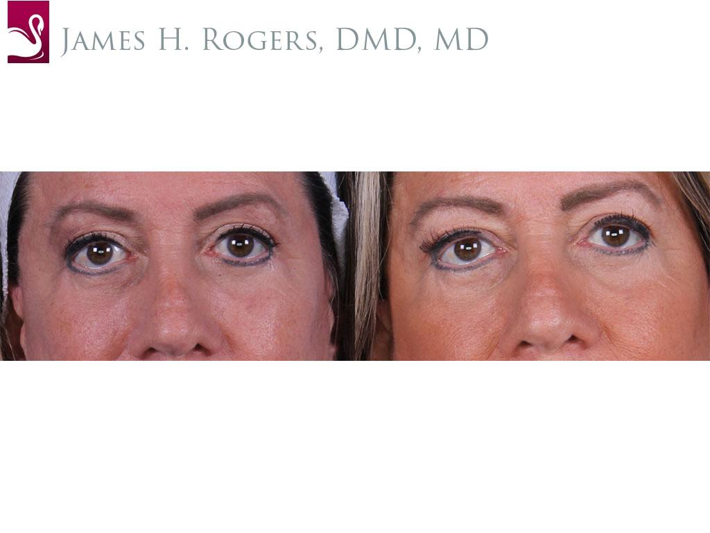 Eyelid Surgery Case #52421 (Image 1)