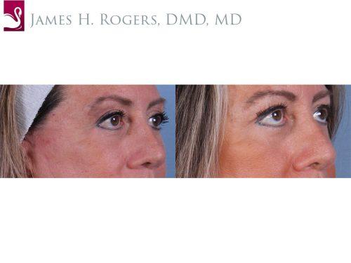 Eyelid Surgery Case #52421 (Image 2)