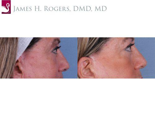 Eyelid Surgery Case #52421 (Image 3)