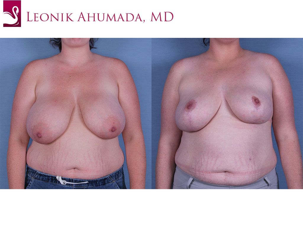 Female Breast Reduction Case #57777 (Image 1)