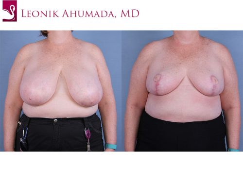 Female Breast Reduction Case #64819 (Image 1)
